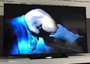 Cirurgia realizada no HSJosé é case de sucesso em Congresso Nacional de ortopedia
