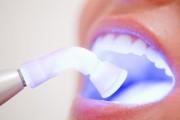 Clareamento a laser: dentes brancos sem desconforto