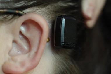 Nova tecnologia é utilizada em implante de prótese auditiva