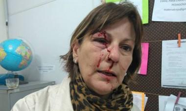 Professora agredida em escola de Santa Catarina