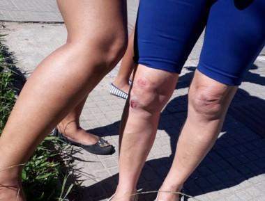 Senhora tropeça em falha na calçada, cai e fere os joelhos