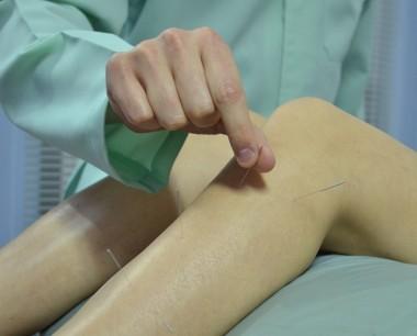 Acupuntura auxilia pacientes em tratamento de quimioterapia