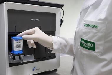 Tecnologia americana agiliza diagnósticos moleculares