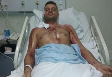 Motociclista se recupera após ser atingido por um raio