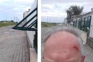 Lixeira aberta causa ferimento em pedestre no Rincão